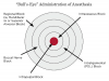 "ADMINISTRATION APPROACH (2.) The ""bull's eye"" administration of anesthesia for endodontic treatment."