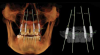 Figure 4 Implants and abutments placed, with the model turned off and the CBCT in view (left). Implants and abutments in place with pinned model scan and CBCT off (right).