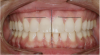 Figure 1  Dental midlines should be as close to coincident as possible. Gingival height of maxillary lateral incisors should be even with a line between the gingival height of the central incisor and canine to 1.5 mm below that line.