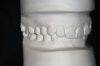 Figure 7A  This case is an example of the importance of evaluating the bite with the joints seated in a stable position. Orthodontic treatment was rendered to correct a