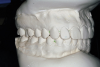 Figure 7D  This case is an example of the importance of evaluating the bite with the joints seated in a stable position. Orthodontic treatment was rendered to correct a