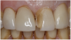 Figure 1 A patient presented with a fractured veneer on tooth No. 9.