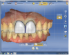 Figure 17 Several tools, including a grid to verify restoration symmetry, were utilized to modify the shape and form of the veneers.