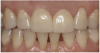 Figure 18 View of the restorations after adhesive resin cementation.