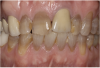 Figure 19 A patient presented with an uneven smile, discolored teeth, and insufficient tooth display when smiling.