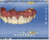 Figure 22 After cementation, the eight provisionalized teeth were scanned.