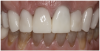 Figure 24 Close-up retracted view of the completed CAD/CAM crown restorations following adhesive cementation.