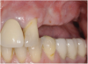 Figure 11  Edentulous left posterior maxilla with alveolar ridge deficiency.