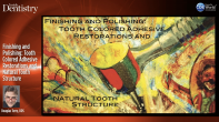 Finishing and Polishing: Tooth Colored Adhesive Restorations and Natural Tooth Structure Webinar Thumbnail