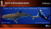 How Far Can We Push Adhesive Dentistry Webinar Thumbnail