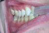 (8.) The disadvantage of thermoplastic trays is that they only come in one size; therefore, for patients with larger arches, some of the teeth may not be covered and, thus, will not be bleached.