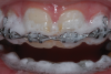 (12.) When 10% carbamide peroxide is injected onto the braces, it immediately begins foaming upon contact with the plaque.