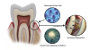 (1.) Fundamentals of periodontal regeneration.