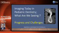 Are Dental X-rays Still an Option in Pediatric Dentistry? Webinar Thumbnail